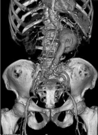 3D recon of abdominal aortic aneurysm anterior