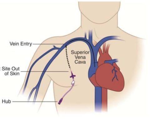 Broviac Catheter (Broviac line)
