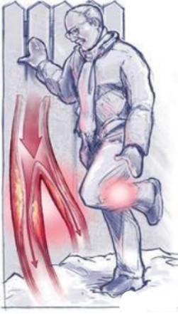 PAD leg pain