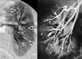 angiogram showing renal aneurysms in a patient with polyarteritis nodosa