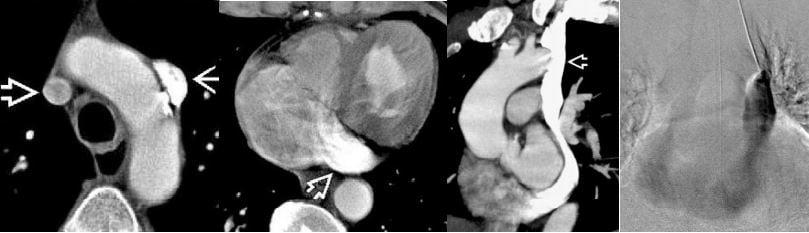 CT and Angiogram of persistent left superior vena cava