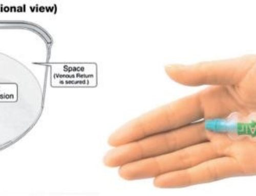 TR band application and removal for trans radial approach procedures