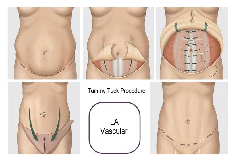Tummy Tuck procedure