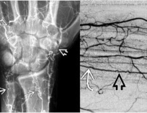 Buerger's Disease (Thromboangiitis Obliterans)