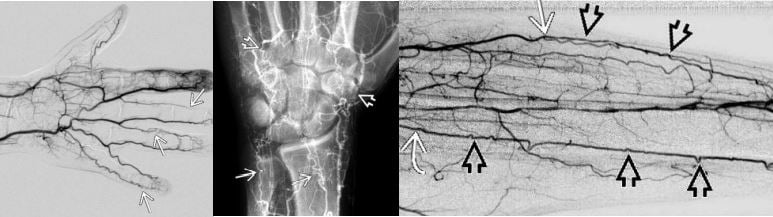 Thromboangitis obliterans digital subtraction angiogram