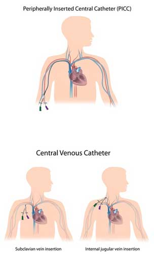 Three most common sites of central venous catheter insertion