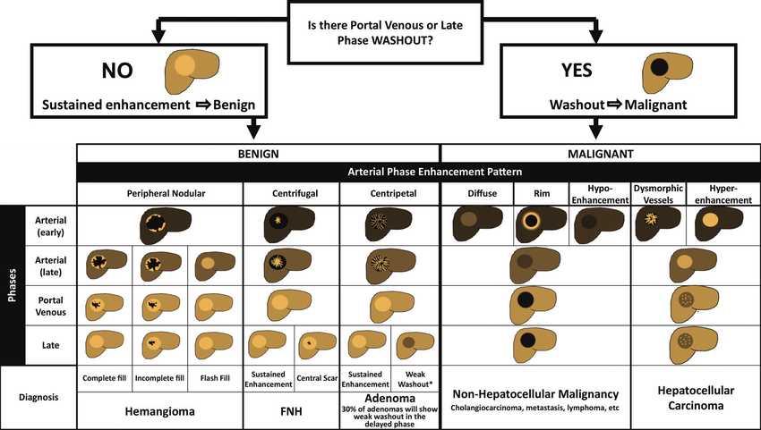 liver mass enhancement