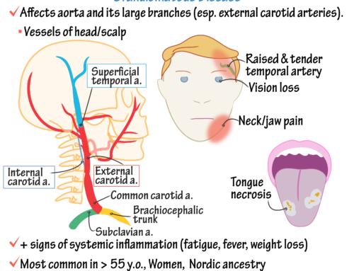 Giant Cell Arteritis (Temporal Arteritis)