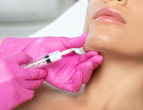 Kybella – Melt away your double chin