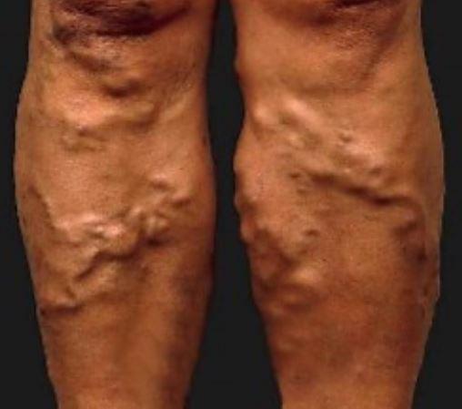 lower extremity varicose veins