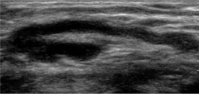 normal lymph node on ultrasound