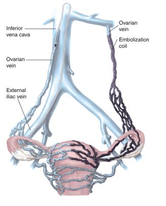 Pelvic congestion syndrome treatment