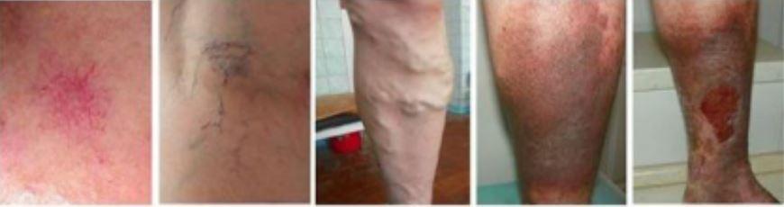 progression of varicose veins